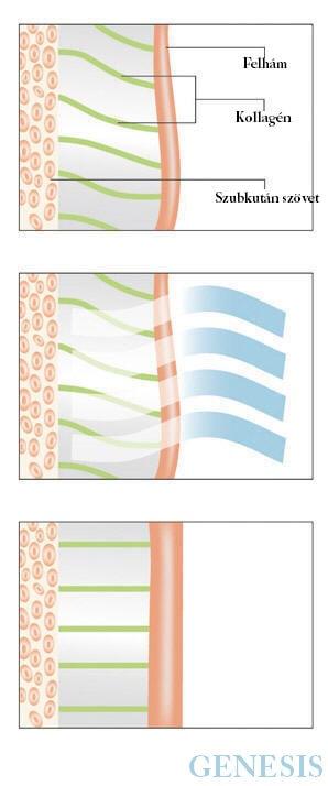 genesis arckezelés kezelés hatása a bőrre