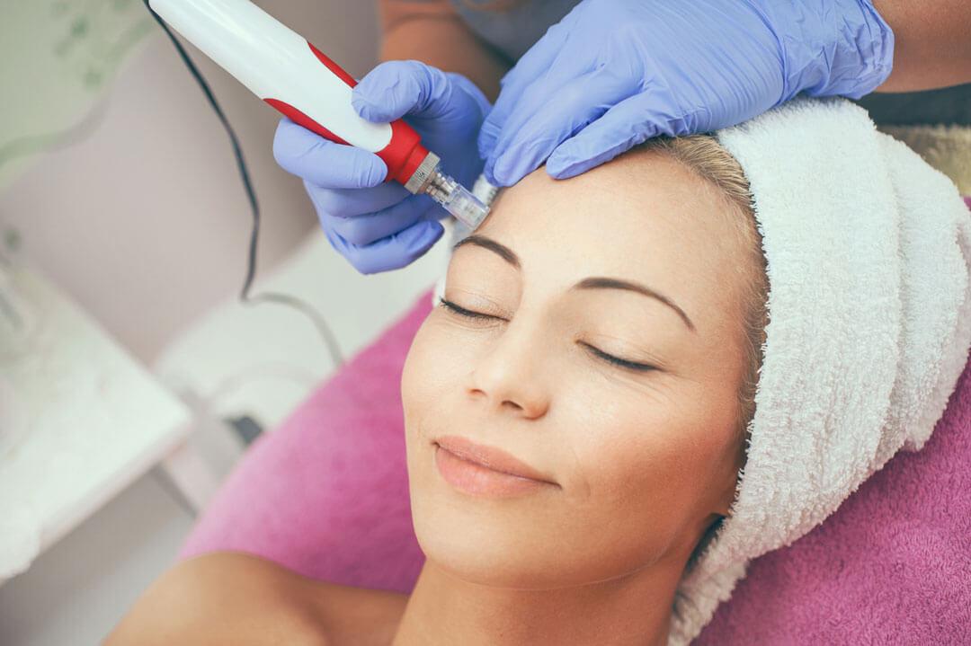 Face lift with collagen induction - RevitalMED Esztétikai Központ
